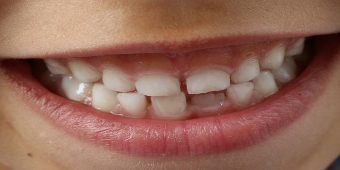 traumi ai denti